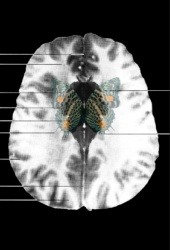 MRI Butterfly (6)