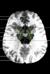 MRI Butterfly (8)