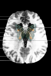 MRI Butterfly (11)