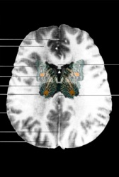 MRI Butterfly (15)