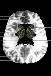 MRI Butterfly (14)